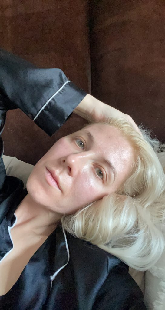 Katrina Olson 5 days post halo treatment Dermapure