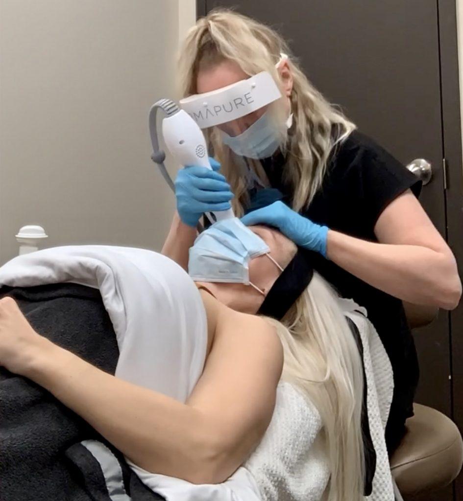 Dermapure Thermage Eye Treatment Katrina Olson