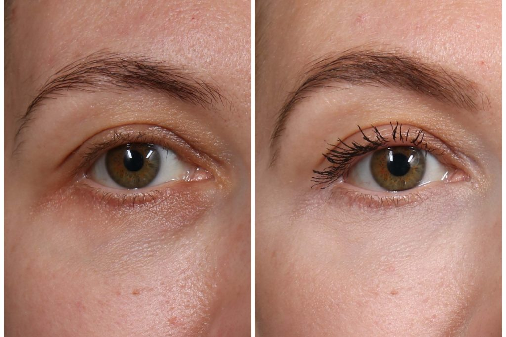 Katrina Olson Eyes before and after thermage dermapure close-up