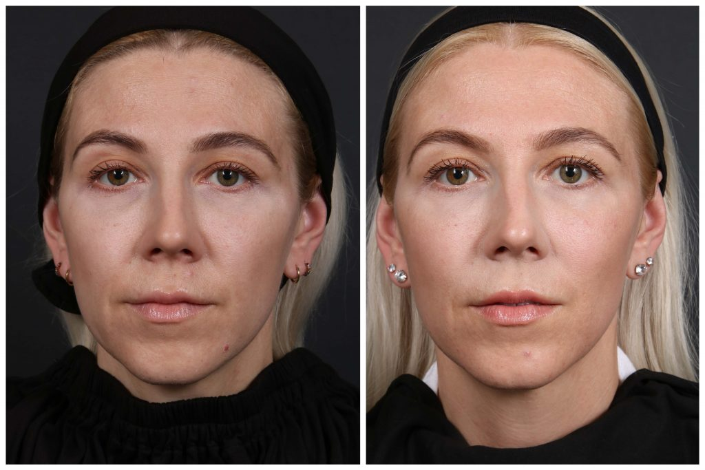 Katrina Before & After April to June Dermapure